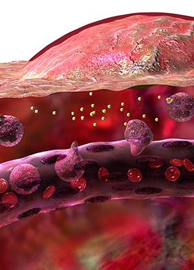 Diagram of inflammation: inflammatory response